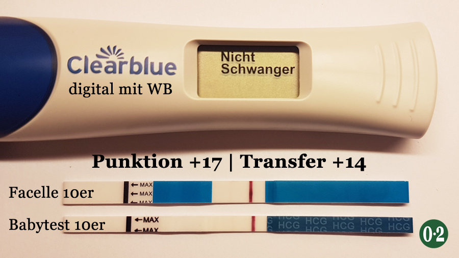 ICSI Schwangerschaftstests Punktion plus17 Tage