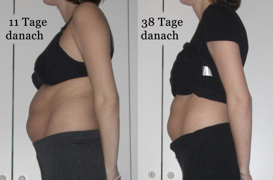 Bauch 11 und 38 Tage nach der Geburt